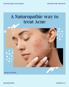 A Naturopathic way to treat Acne