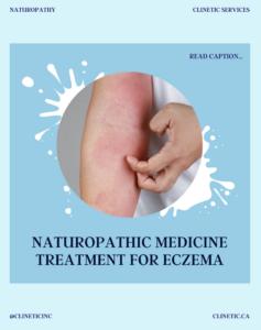 Naturopathic medicine treatment for Eczema